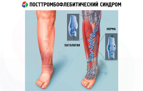 funcționarea cu varicoză pelviană)