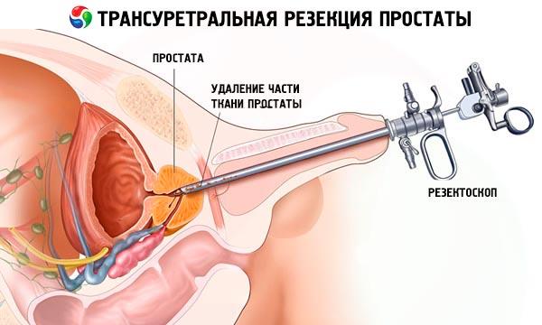 Consecințele eliminării adenomului de prostată - Osteomul November