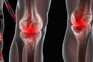 tratamentul inflamației purulente a articulațiilor