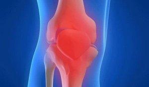 clasificarea și nomenclatura bolilor articulare cum și cum poate fi tratată artroza