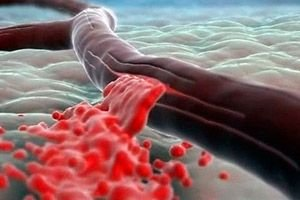 anemie posthemoragica acuta)