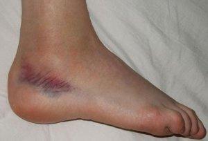 deteriorarea ligamentelor articulației gleznei cu 1-2 grade