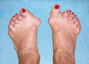 deformând artroza articulațiilor părților mijlocii ale picioarelor)