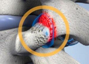 artroza intervertebrală