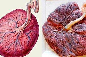 Grad de maturare placenta