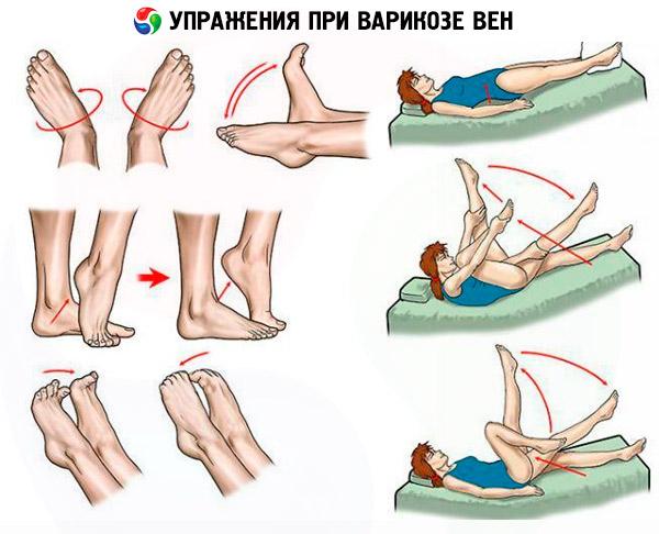 Varice ale extremităților inferioare simptome foto și tratament - Embolie